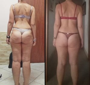 a_03_cellulite_beforeafter_subja_650w
