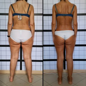 b_03_cellulite_beforeafter_subjb_650w