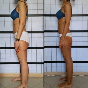 b_04_cellulite_beforeafter_subjb_650w